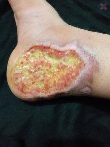 بهبود زخم برگر پس از درمان زخم