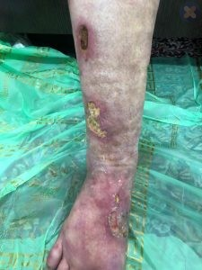 به رنگ پریده بودن پوست در زخم های شریانی توجه داشته باشید